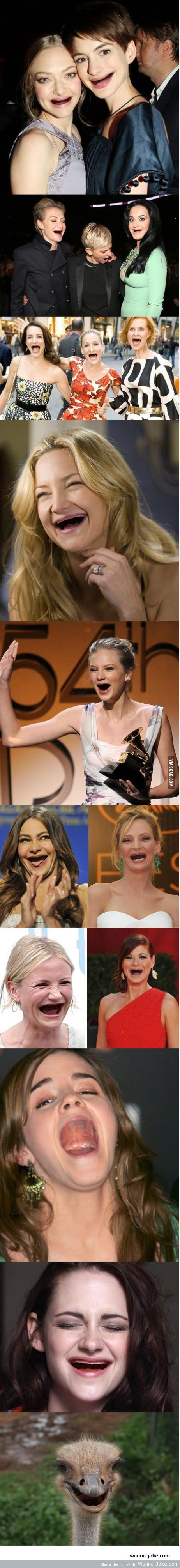 celebs-without-teeth