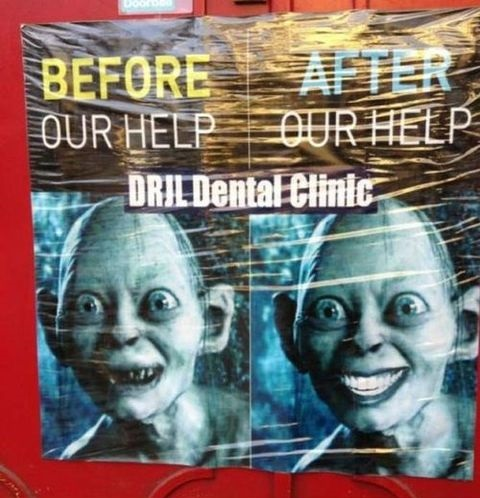 funny-picture-before-after-dental-clinic