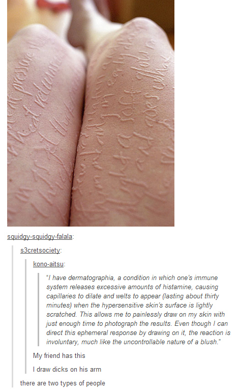 funny-dermatographia-two-kinds-of-people