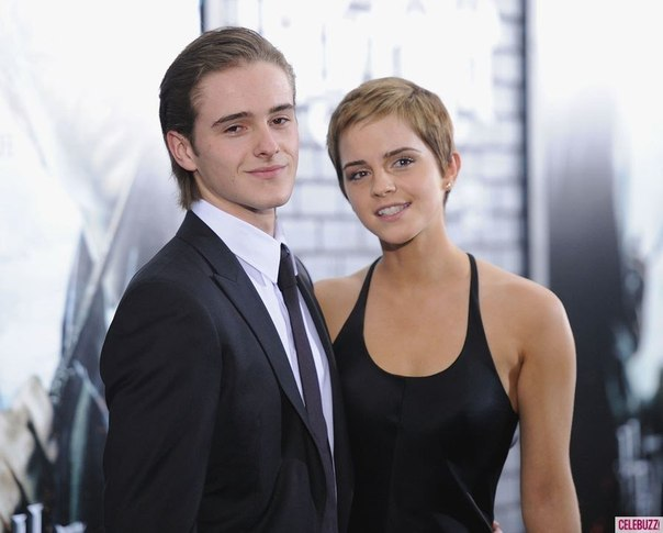 emma-watson-brother-look-alike
