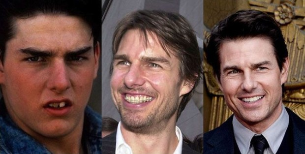 tom-cruise-smile-teeth