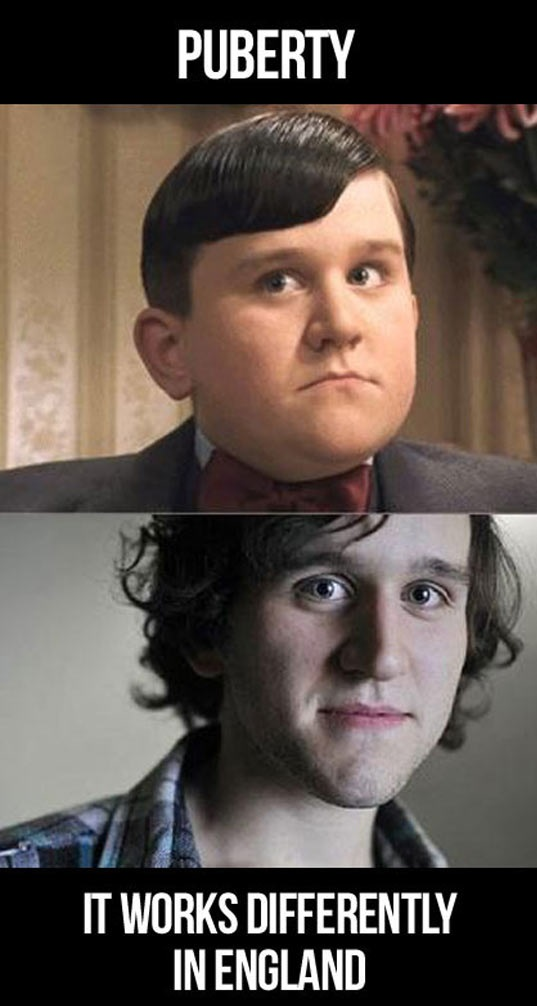 cool-Dudley-Harry-Potter-before-after