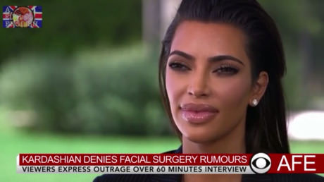 kardashian-facial-surgery-news